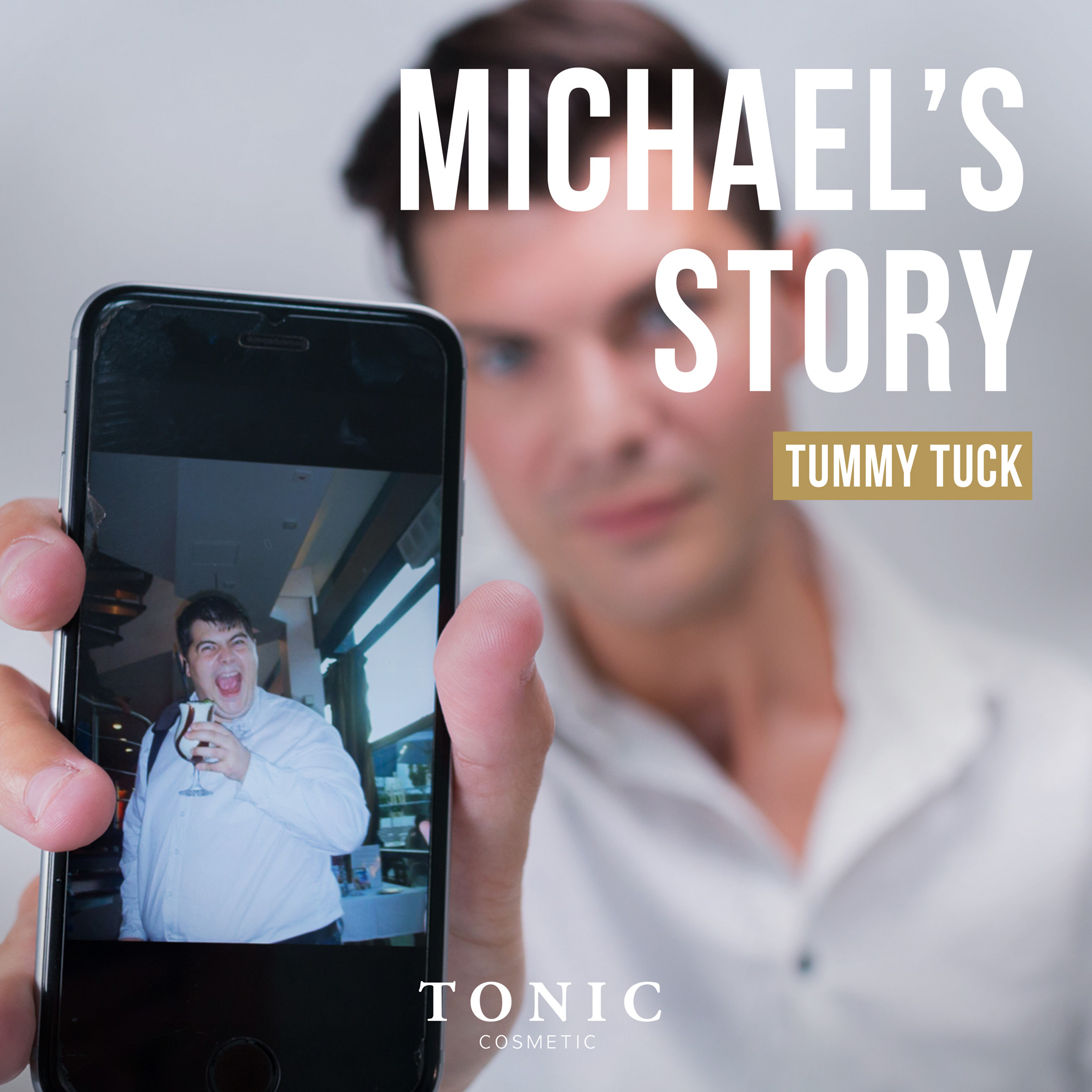 michael-cosmetic-surgery-tummy-tuck