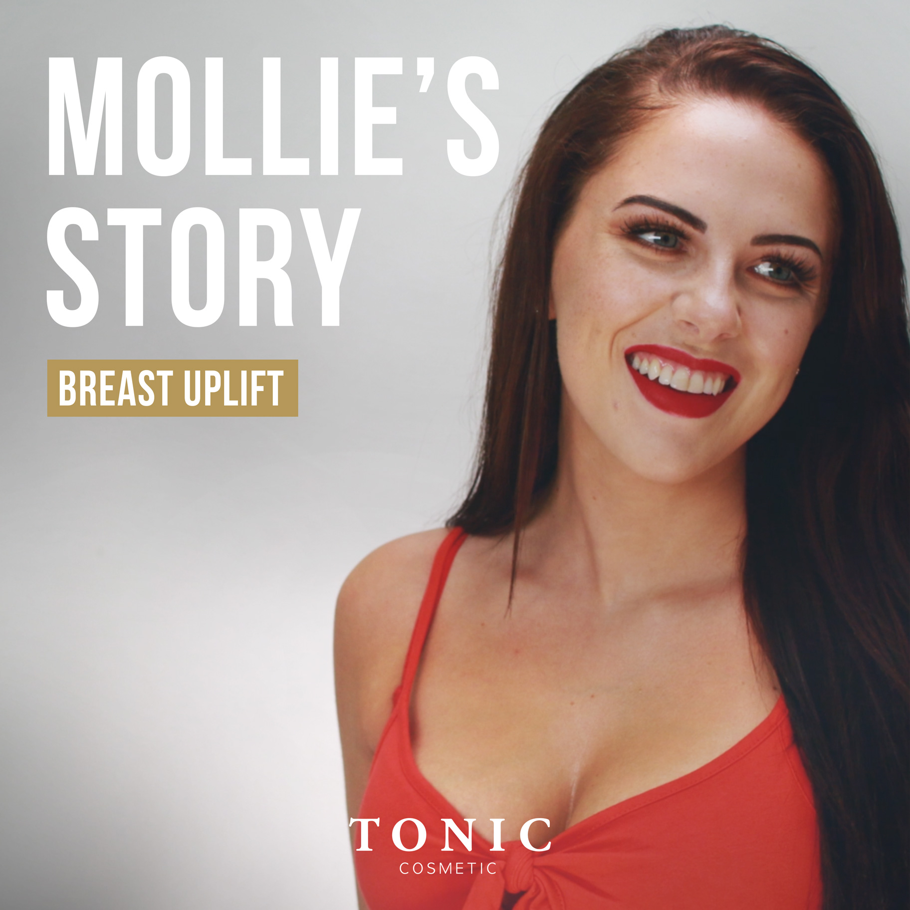 Cosmetic-Surgery-Mollie's-Story-breast-uplift-boob-job